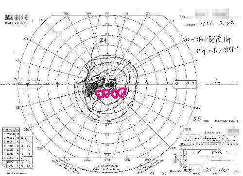 視野検査2.JPG